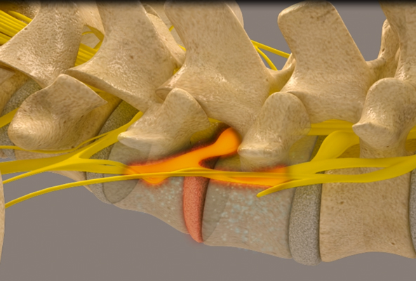 Spinal Decompression Phase 2 in Chapin SC